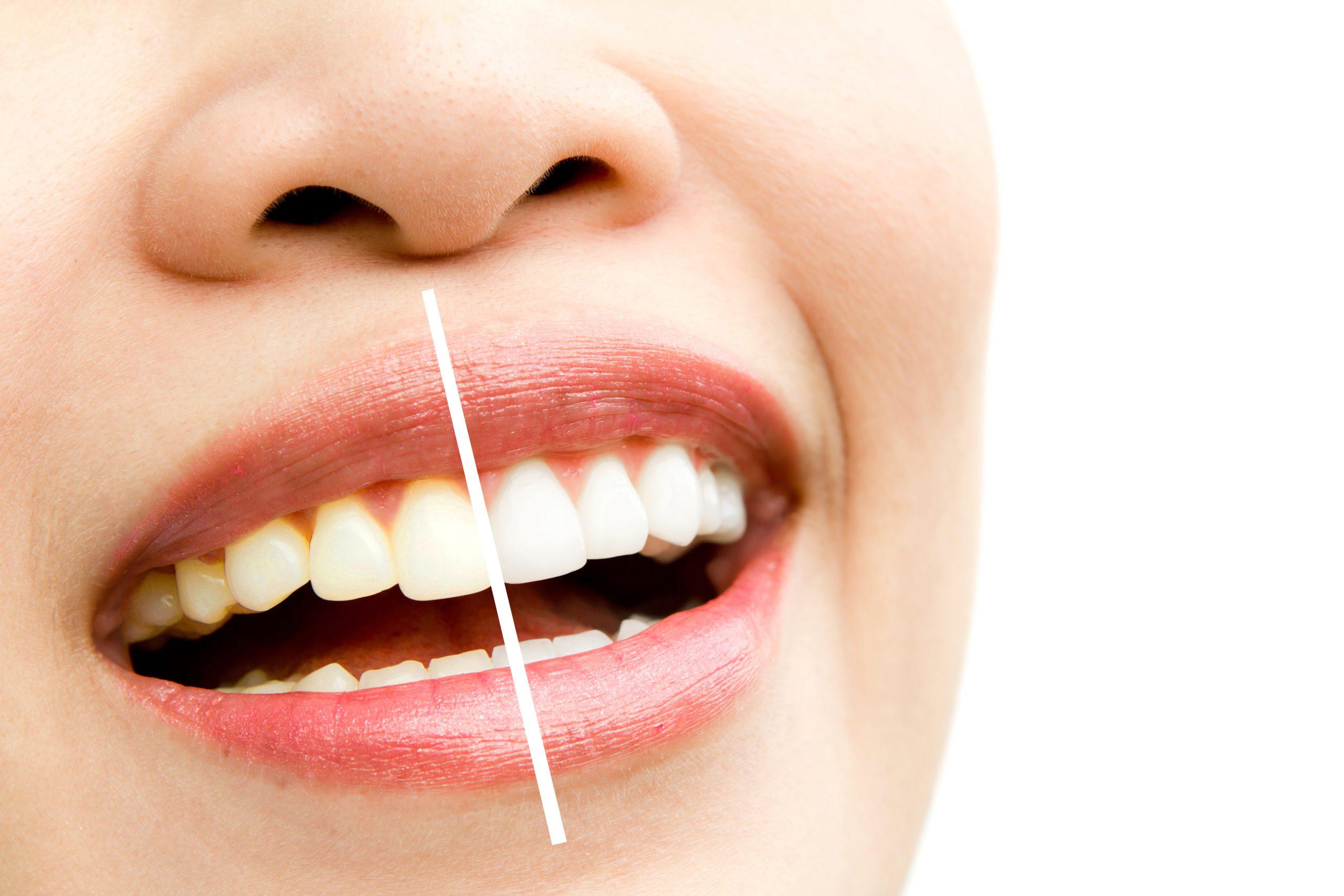 tanden bleken rotterdam