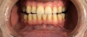 Tanden Bleken Before