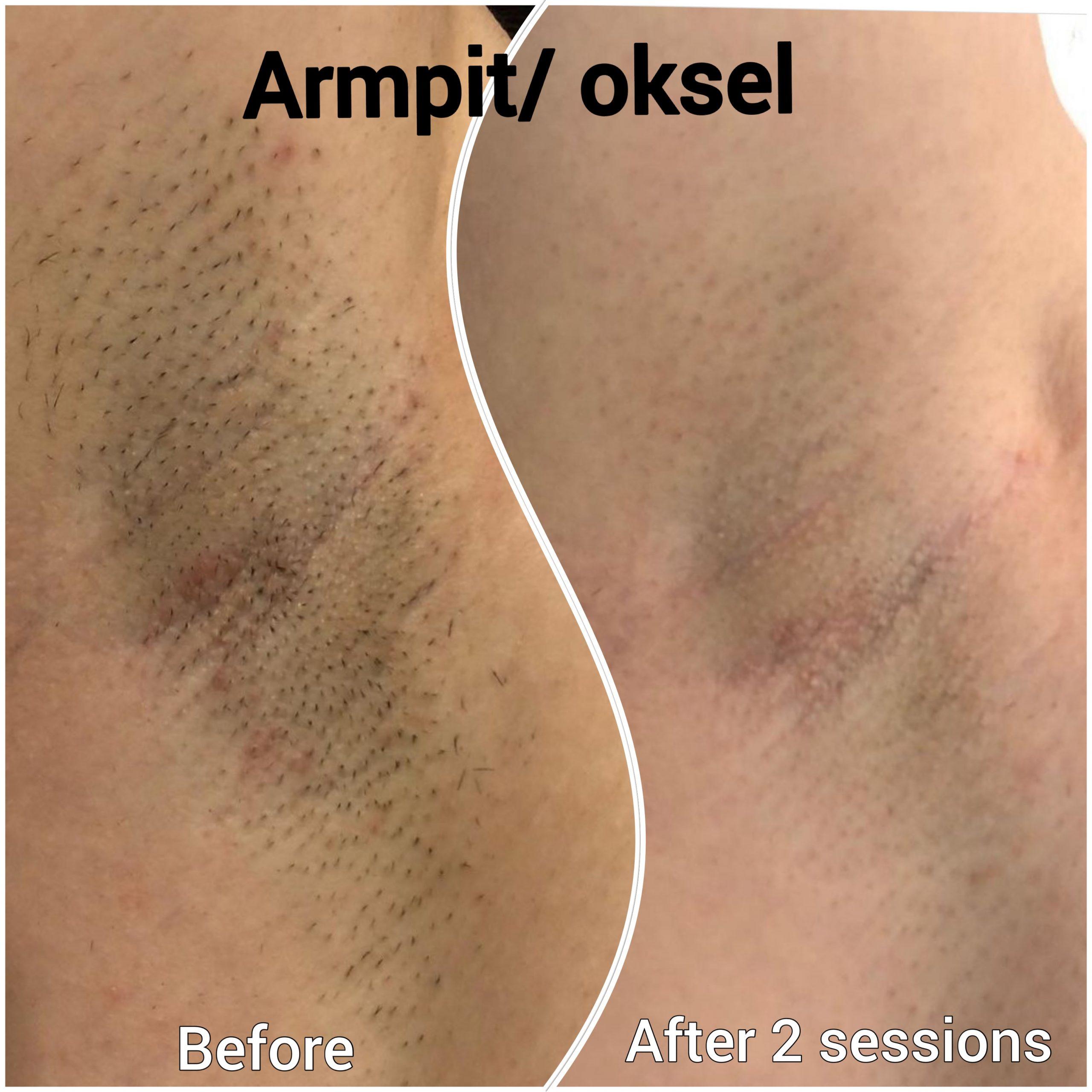 Before en after laser ontharen oksel