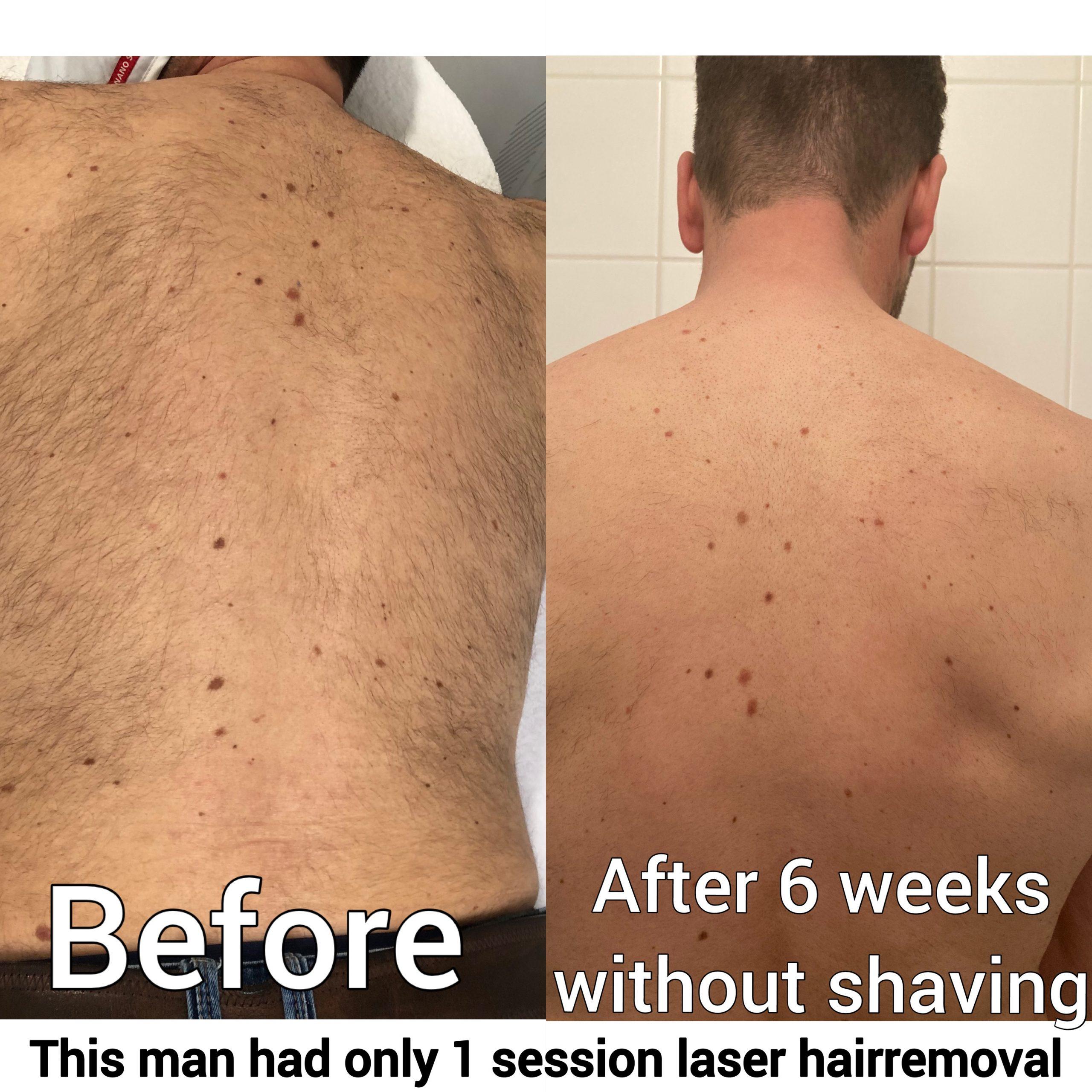 Before en after laser ontharen rotterdam rug man